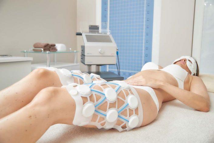 Kryolipolyse an den Beinen